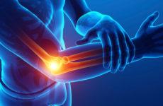 Symptoms and Treatment Tennis Elbow
